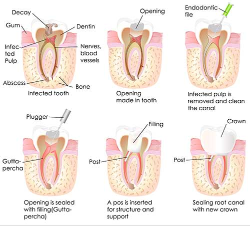 Roseville Root Canal