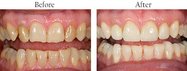 Roseville Before and After Invisalign
